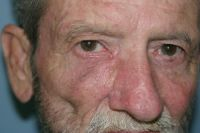 Post Operative Cheek/Eyelid Cancer Reconstruction