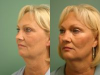 Cheek and Chin Filler - Before and After